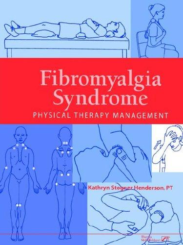Download Fibromyalgia Syndrome