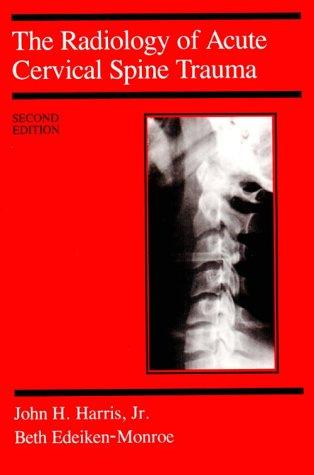 The radiology of acute cervical spine trauma