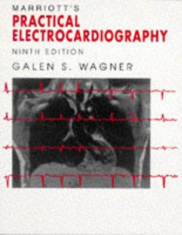 Marriott's practical electrocardiography.