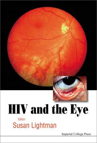 HIV And the Eye by Susan Lightman
